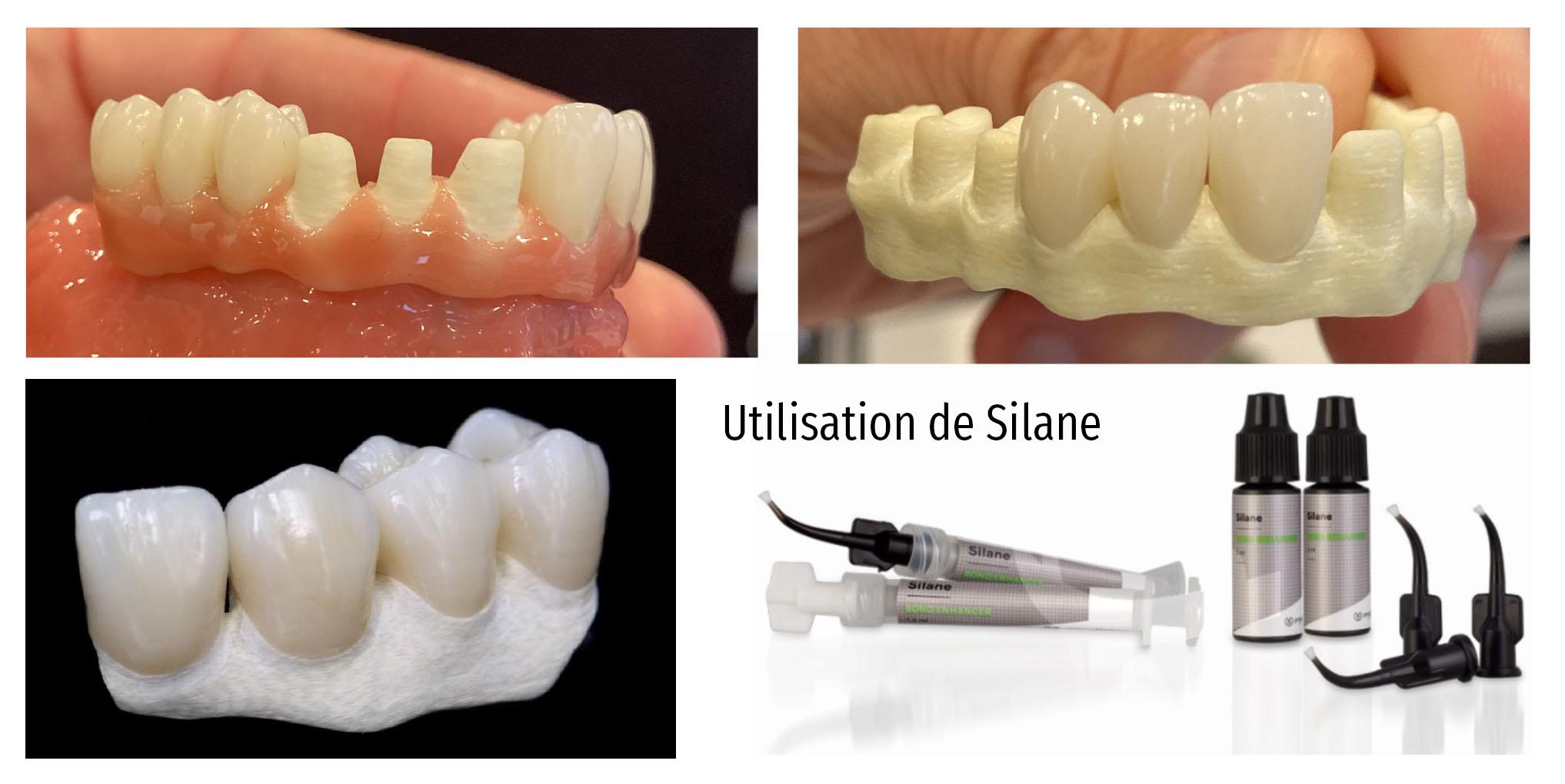 dents-individuelles-ceramique-zantex
