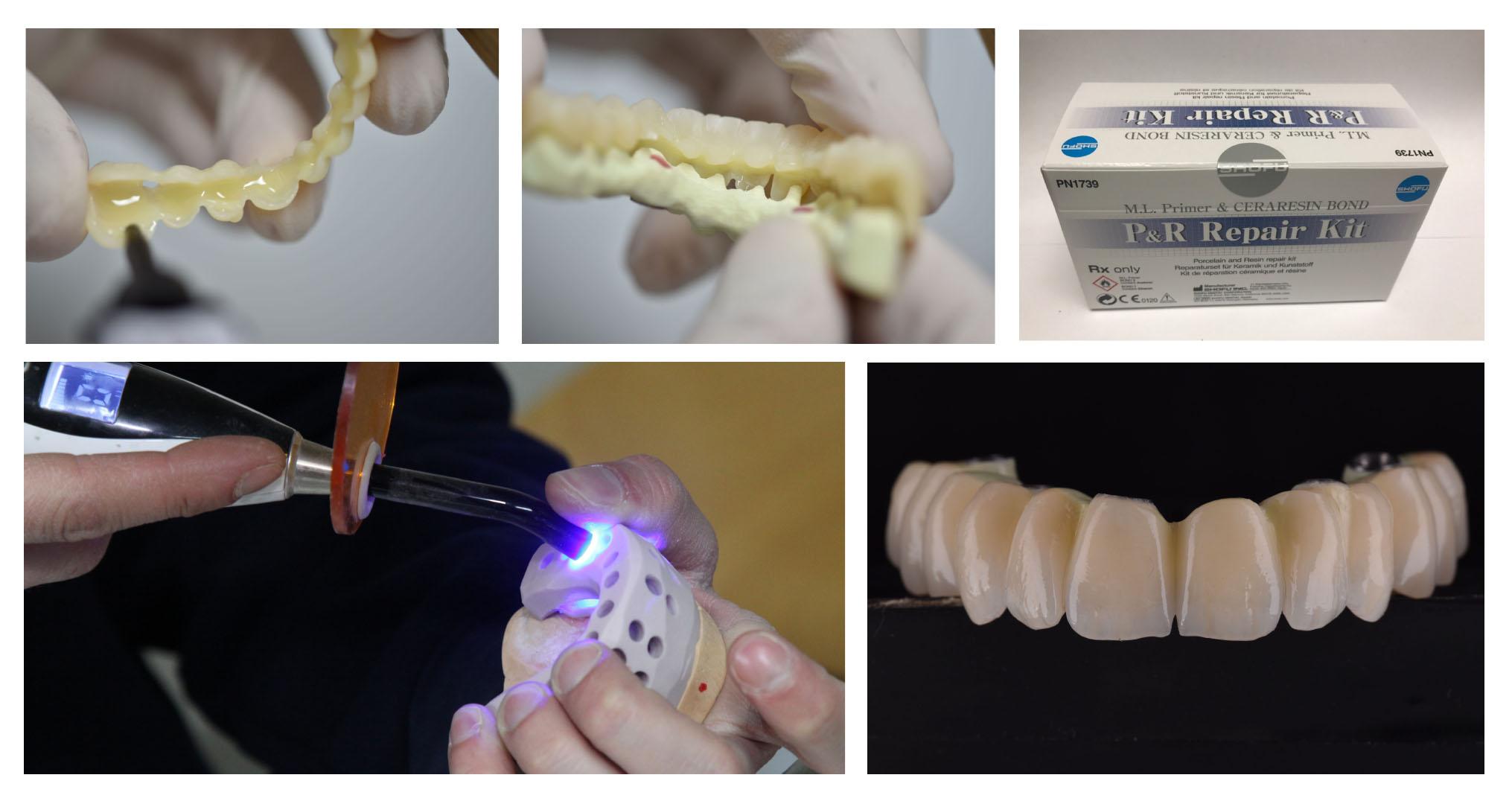 injection-100-composite-zantex